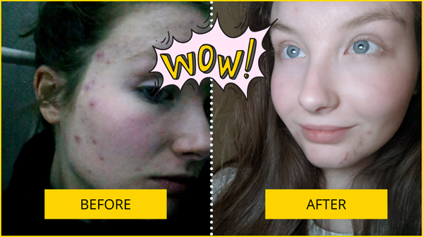Before and After Acne Results